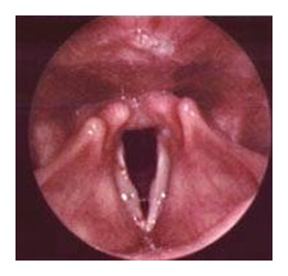 biopsie de la gorge