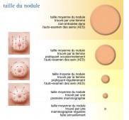 Taille des nodules & palpation