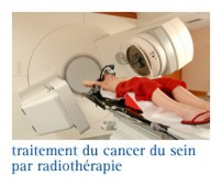 traitement par irradiation du cancer du sein