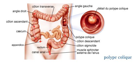 symptomes polypes vessie