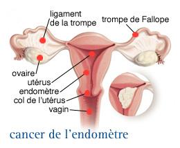 InfoCancer - ARCAGY - GINECO - Localisations - Cancers féminins ...
