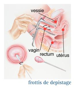 Colposcopie pendant la grossesse