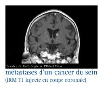 IRM T1 injecté en coupe coronale