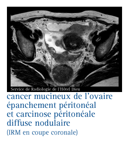 infocancer arcagy gineco localisations cancers f minins cancer de l ovaire formes de. Black Bedroom Furniture Sets. Home Design Ideas
