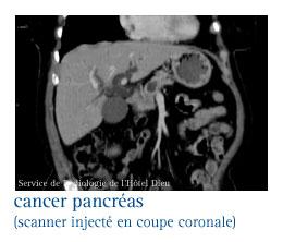 pancréas symptômes du cancer
