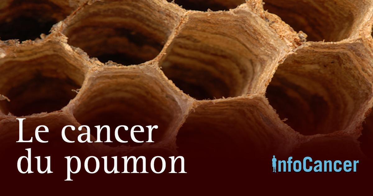 InfoCancer - ARCAGY-GINECO - Voies aériennes - Cancer du ...