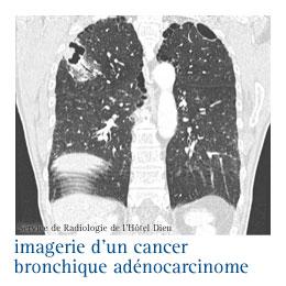 Cancer neuroendocrine pulmonaire, Cancer Colon - Cancer neuroendocrine du poumon