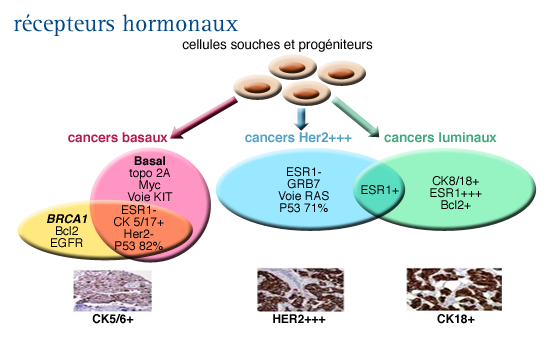 Cancer hormonal infiltrant