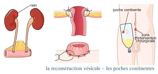 cancer colon vessie verme para oxiurus